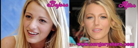 Blake Lively Before And After Nose Jobl Nose Job